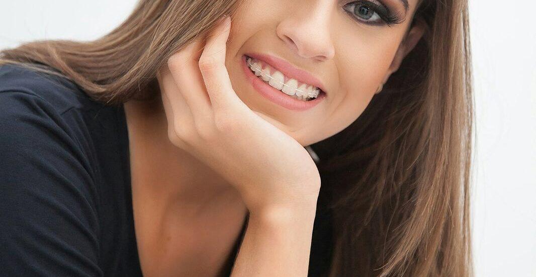 aparelhos autoligados | NewONE Orthodontics