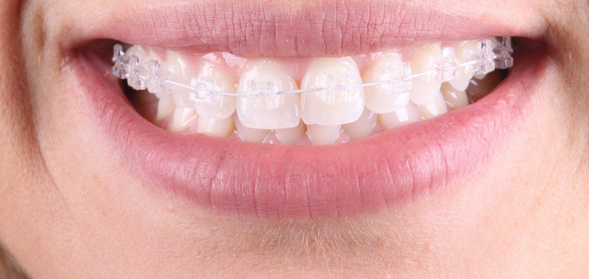 Aparelho Ortodôntico Transparente | NewONE Orthodontics