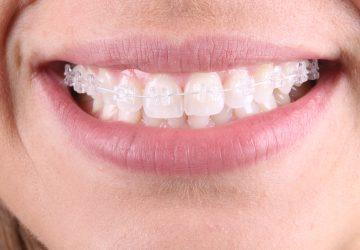 Aparelho Ortodôntico: quais as opções de tratamento dentário? | NewONE Orthodontics