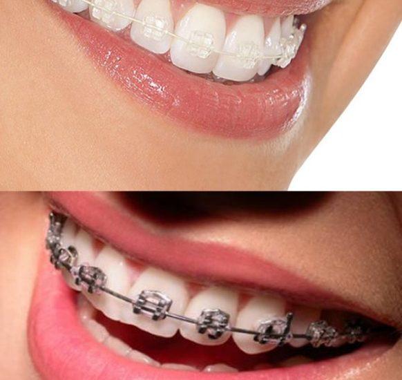 Aparelho Autoligado x Convencional | NewONE Orthodontics