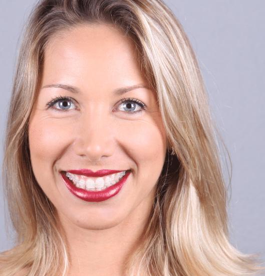 aparelho autoligado | NewONE Orthodontics