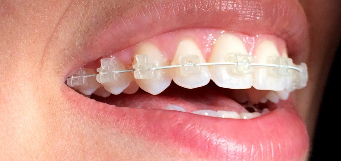 aparelho dentário | NewONE Orthodontics