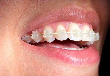 Recomendações técnicas para tratamento comaparelho dentário | NewONE Orthodontics