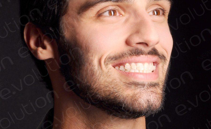 Aparelho Autoligado Estético: vale o investimento? | NewONE Orthodontics