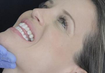 Aparelho fixo autoligado: entenda os custos do tratamento | NewONE Orthodontics