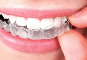 Aparelho Móvel: entenda quando é indicado | NewONE Orthodontics