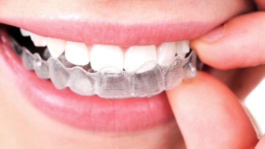 O que é ortodontia | NewONE Orthodontics