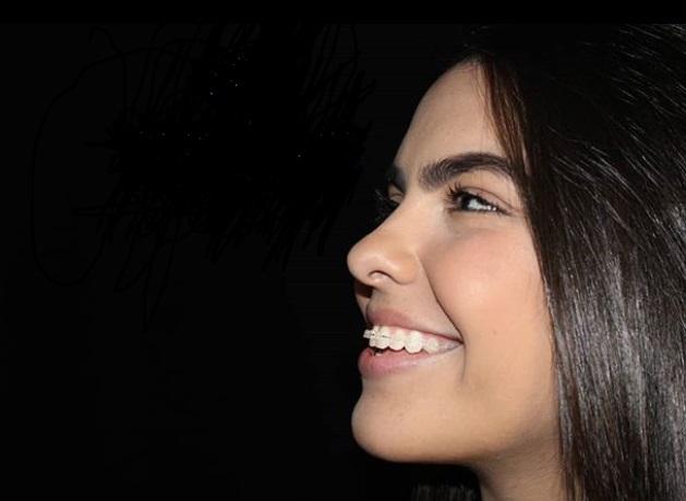 Aparelho Autoligado Transparente | NewONE Orthodontics