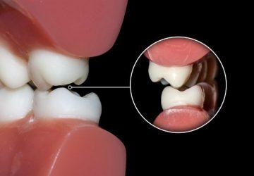 Mordida Cruzada: uma preocupação além da estética | NewONE Orthodontics
