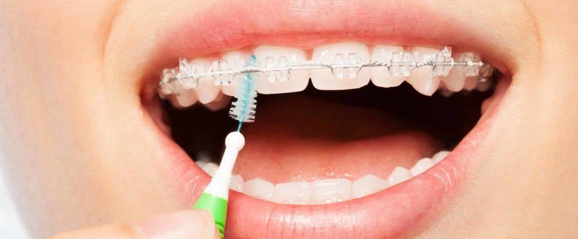 Como escovar os dentes com aparelho: passo a passo | NewONE Orthodontics