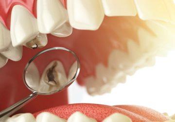 Dente com cárie atrapalha o tratamento com aparelho? | NewONE Orthodontics