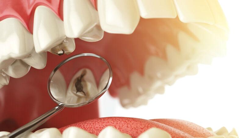 Dente com cárie | NewONE Orthodontics