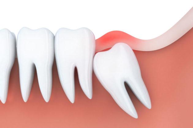 Dente do siso interfere no alinhamento dos dentes. Entenda. | NewONE Orthodontics