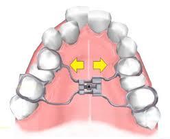 Disjunção palatina x Aparelho autoligado: qual é a diferença? | NewONE Orthodontics