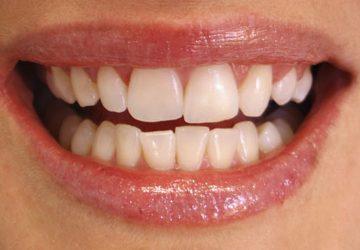Apinhamento dental: o que é? | NewONE Orthodontics