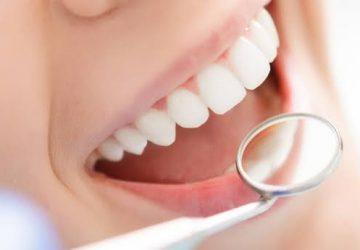Tártaro no dente: como tratar? | NewONE Orthodontics