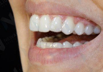 Alinhador transparente - mais estética no tratamento dentário | NewONE Orthodontics