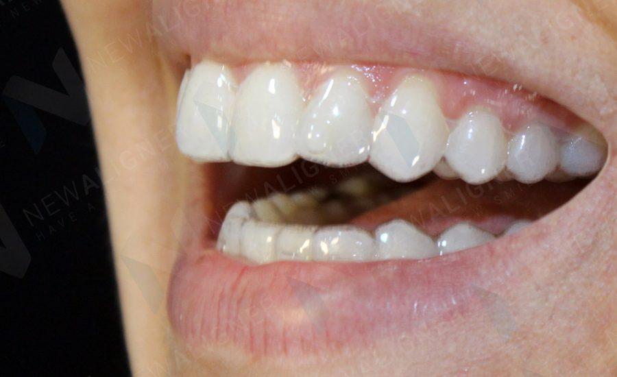 alinhador transparente | NewONE Orthodontics