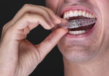 Aparelho autoligado vs alinhadores. Veja as vantagens e desvantagens | NewONE Orthodontics