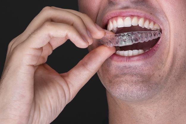 Aparelho autoligado vs alinhadores | NewONE Orthodontics