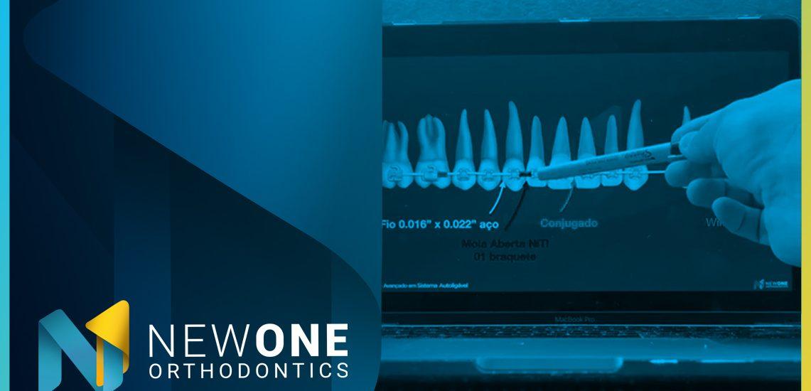 LIVE - Como utilizar a Ancoragem Esquelética no Tratamento Híbrido?   NewONE Orthodontics