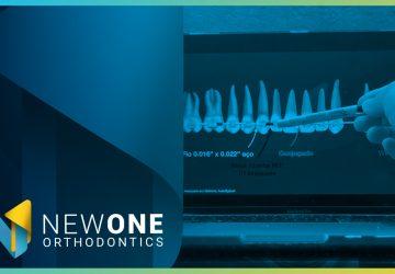 LIVE - Como utilizar a Ancoragem Esquelética no Tratamento Híbrido? | NewONE Orthodontics
