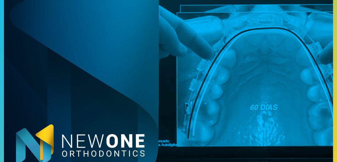 LIVE - Como o Sistema Autoligável pode potencializar a Bioadaptação?   NewONE Orthodontics