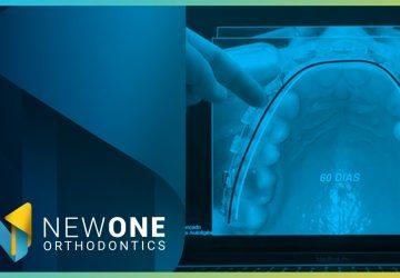 LIVE - Como o Sistema Autoligável pode potencializar a Bioadaptação? | NewONE Orthodontics